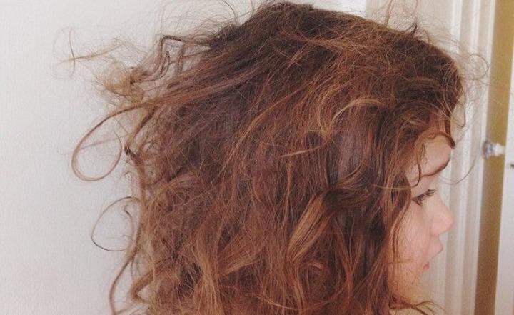 5 Masalah Rambut Ini Memang Boleh Sakitkan Hati Korang, Serabut Kepala Wei! 7