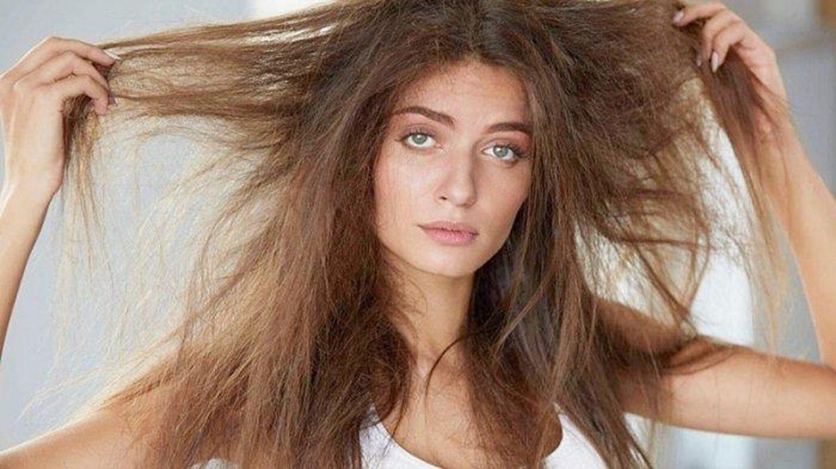 5 Masalah Rambut Ini Memang Boleh Sakitkan Hati Korang, Serabut Kepala Wei! 8