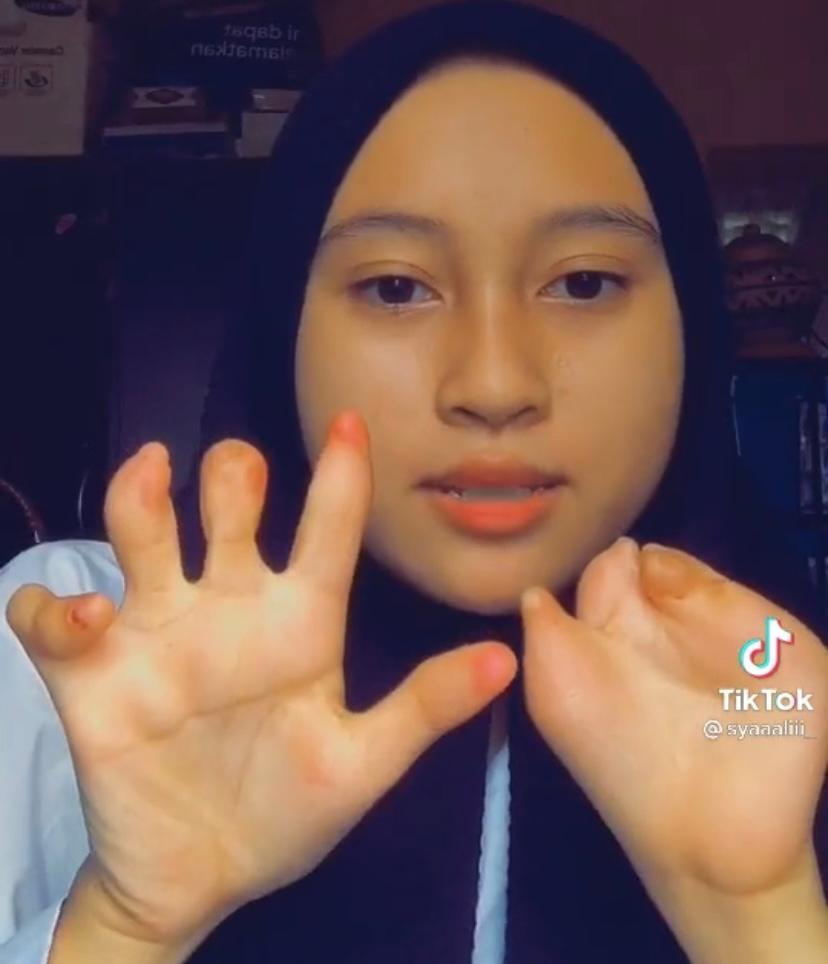 [VIDEO] Jari Tidak Sempurna Seperti Orang Lain, Gadis Ini Tetap Bersyukur! 3