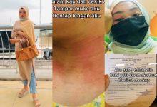 Gadis Lapor Polis Ditampar, Dicekik Bekas Kekasih Gila Tak 'Move On'