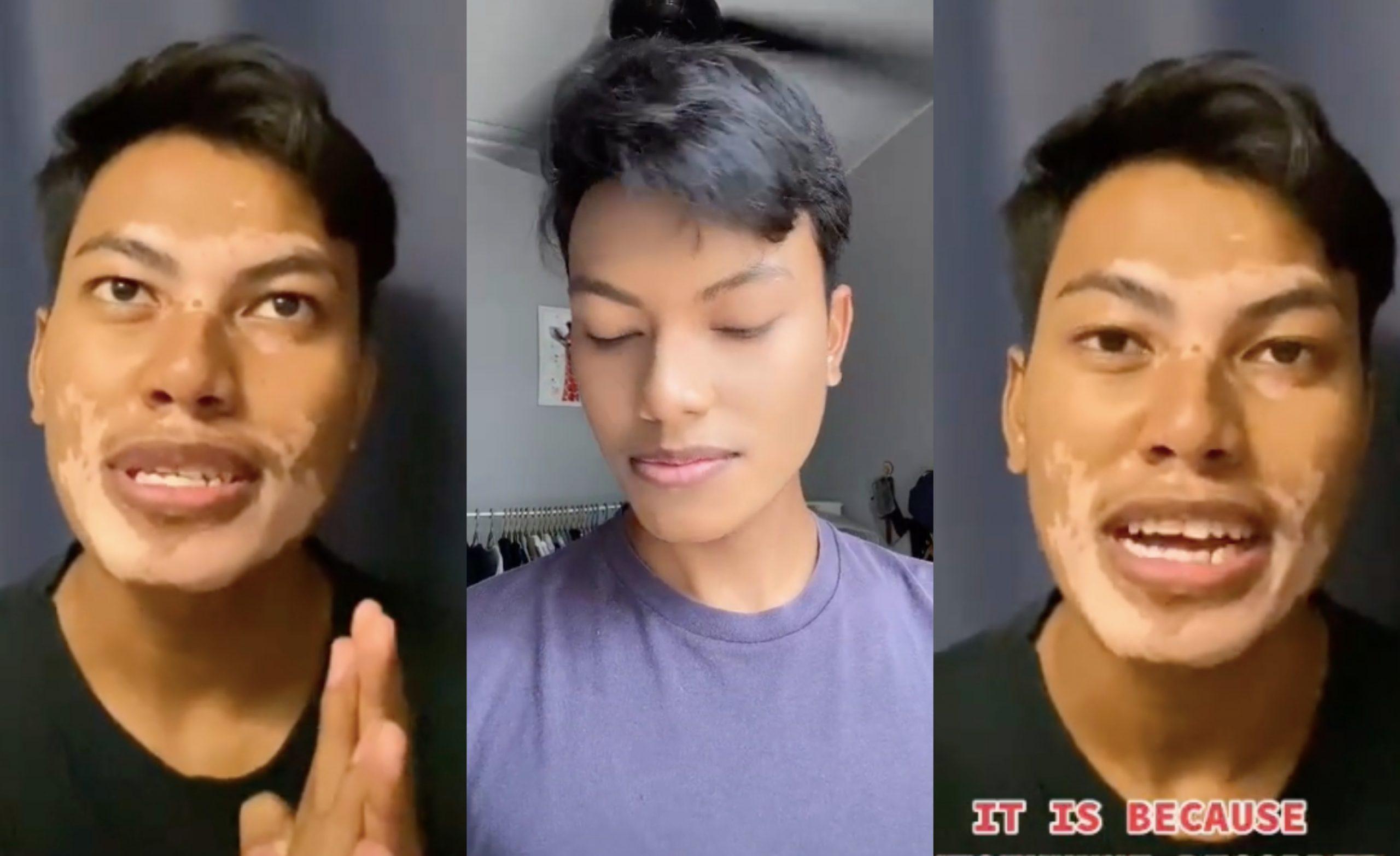 [VIDEO] Bermula Dengan Tompok Kecil Di Muka, Lelaki Hidap Penyakit Kulit Vitiligo Kongsi Cerita