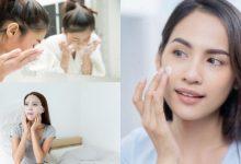 Bintik-Bintik & Tompok Gelap Muncul Di Wajah? 5 Perkara ini Bantu Atasi Masalah Hiperpigmentasi!