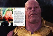 'Nampak Menyeksakan'- Pelakon Avengers 'Thanos' Buat Bekam, Ini Reaksi Pengikutnya Di Instagram