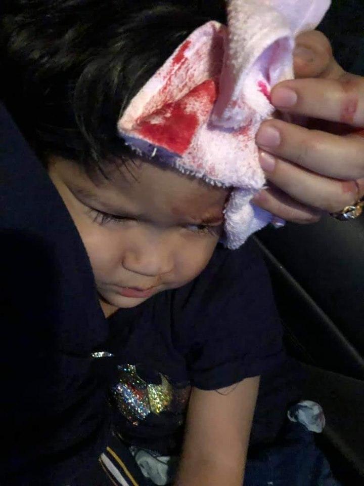 Tips Apabila Anak Kepala Anak Terhantuk